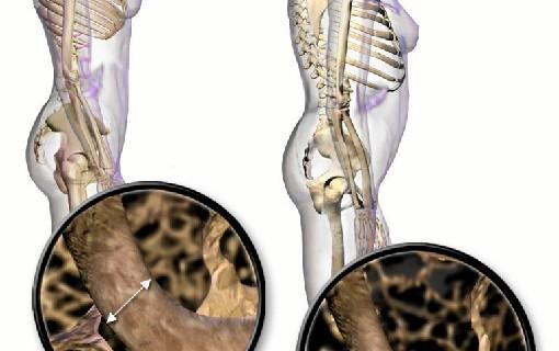 Sanitarios zaragozanos elaboran una guía para tratar la osteoporosis